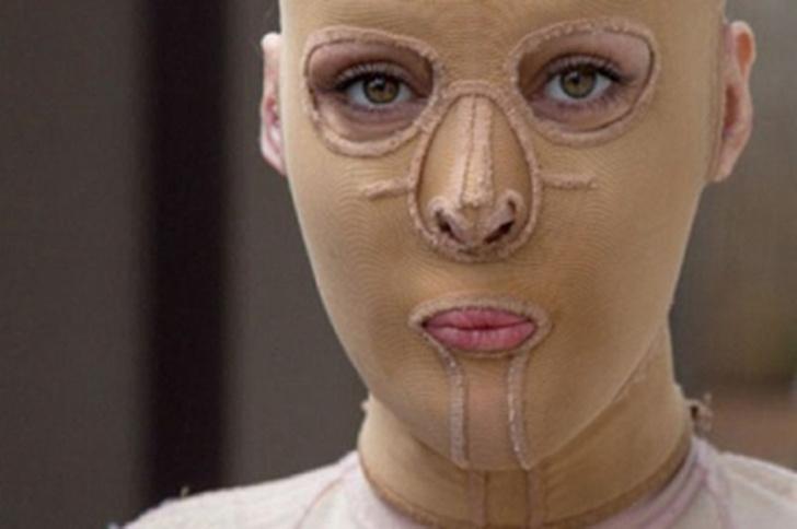 Фото №27 - Модели и обычные девушки, которых облили кислотой: фото до и после