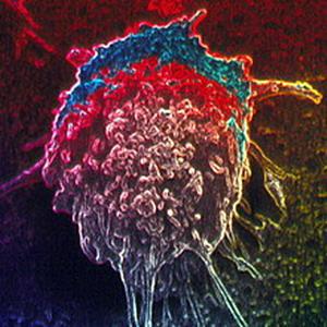Фото №1 - Раковые гены