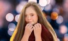 Девочка с лейкемией и синдромом Дауна стала моделью: фото
