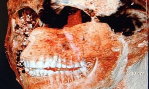 Фото №1 - Зубы древних римлян были здоровее, чем у современных людей
