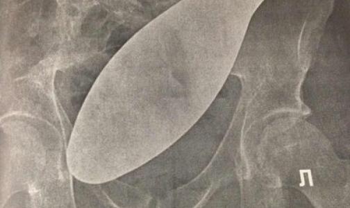 Фото №1 - В петербургской больнице обнаружили «хирургическую подошву» в животе бывшего заключенного