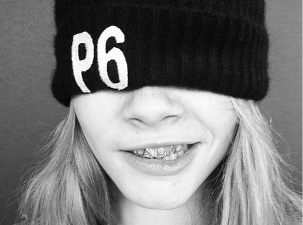 Фото №8 - Дентикюр, LED-подсветка зубов и еще 8 стомалогоческих процедур, о которых не знали наши мамы