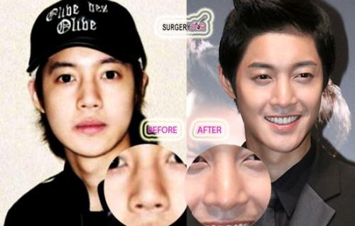 Фото №5 - 7 корейских селебрити, сделавших пластические операции
