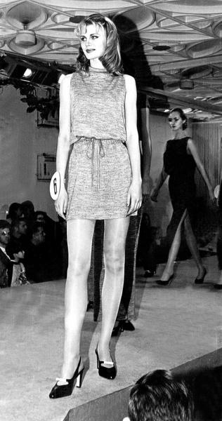 Фото №21 - Модели и обычные девушки, которых облили кислотой: фото до и после
