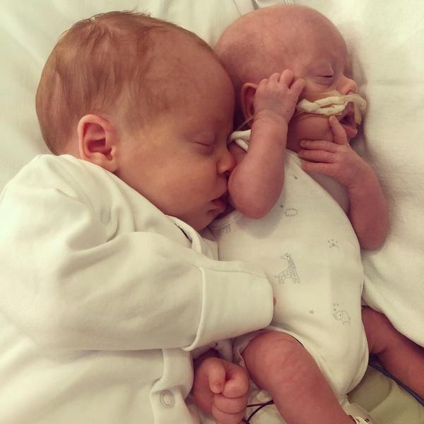 недоношенный ребенок, близнецы, роды близнецов, задержка роста плода, реальная история, история из жизни, фото, новорожденные