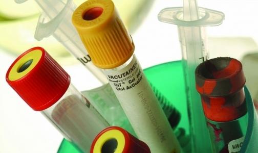 Фото №1 - В Петербурге выявляют гепатит Е в среднем раз в году