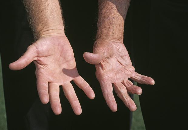 Фото №1 - Ученые выяснили, что у мужчин с короткими пальцами больше шансов умереть от коронавируса