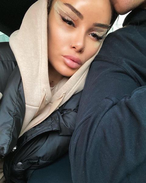 Фото №3 - «Лисьи глазки»: как подтяжка Беллы Хадид стала трендовой процедурой, но почему она не всегда украшает