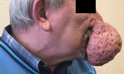 Фото №1 - Петербургские врачи уменьшили нос пациента на полкилограмма