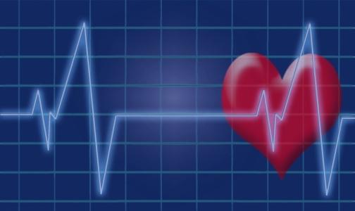 Фото №1 - Эксперты назвали регионы с самой высокой и низкой смертностью от болезней сердца