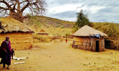 Фото №1 - В туристической Танзании вспышка неизвестной болезни, она поражает желудок и печень. В РФ пострадавших нет