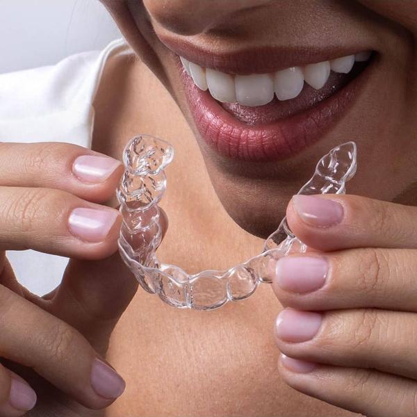Фото №2 - Вместо брекетов: 3 альтернативных способа сделать зубы ровными