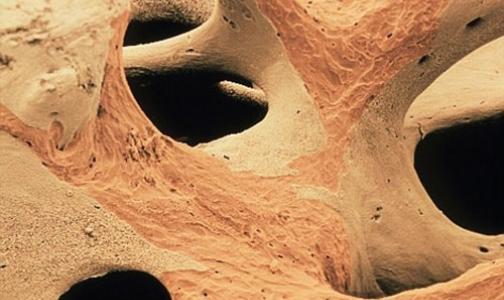 Фото №1 - Остеопороз: бесшумная эпидемия