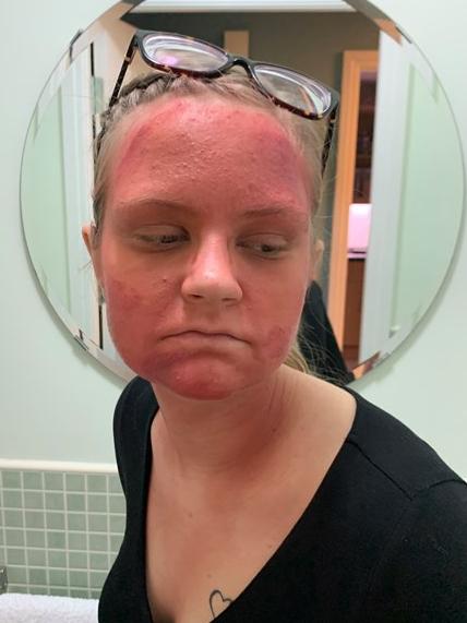 волчанка болезнь симптомы фото лечится красная сыпь на лице