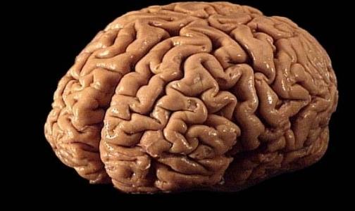 Фото №1 - От работы в офисе уменьшается мозг