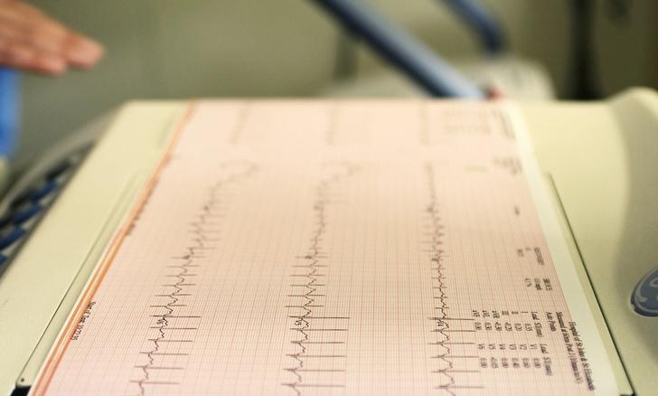 Фото №1 - Опасность сердечного приступа среди женщин недооценена