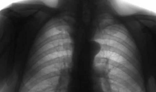 Фото №1 - Прием статинов грозит заболеваниями легких