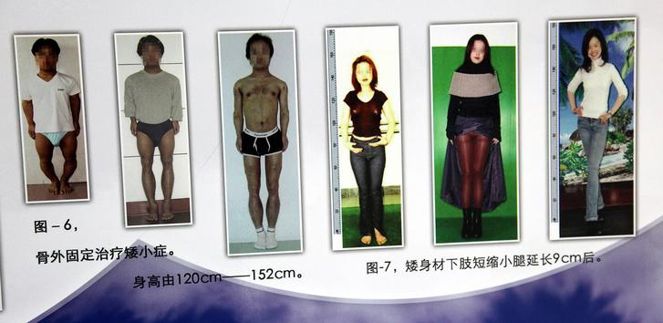 Фото №3 - Делай ноги! Как вырасти на 10 сантиметров и даже больше