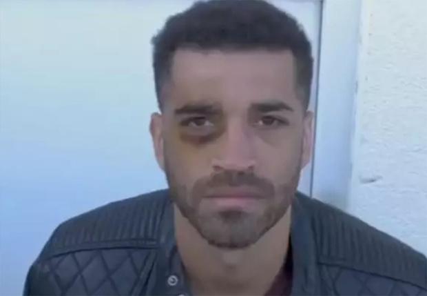 Фото №1 - Чемпион Европы по боксу во время тренировки случайно поставил сам себе синяк (видео)