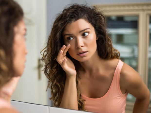 Фото №1 - Не только недосып: о каких проблемах со здоровьем могут говорить темные круги под глазами