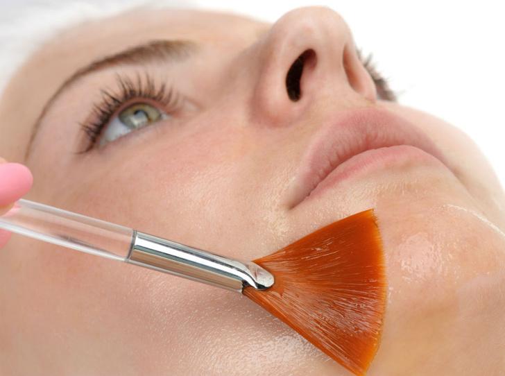 Фото №2 - Как восстановить кожу после пилинга (если вы отложили его на конец зимы)