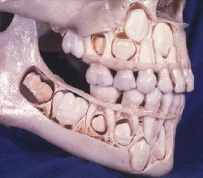 Фото №1 - Бывают даже у новорожденных: 10 любопытных фактов о молочных зубах