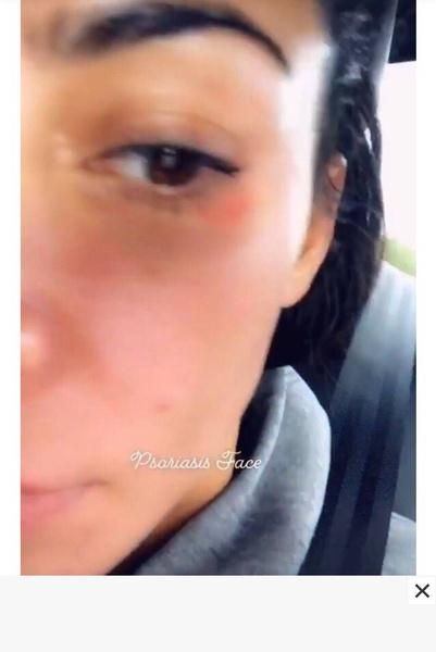 Фото №2 - Weird: Ким Кардашьян поделилась селфи без макияжа и с высыпаниями на коже