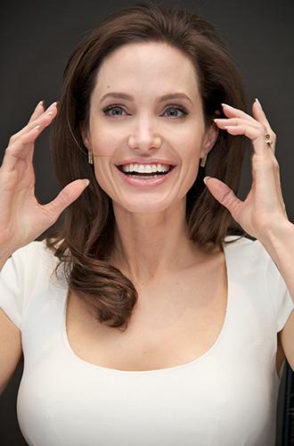 Фото №5 - Нос Кейт Миддлтон и еще 9 самых популярных форм носа для ринопластики