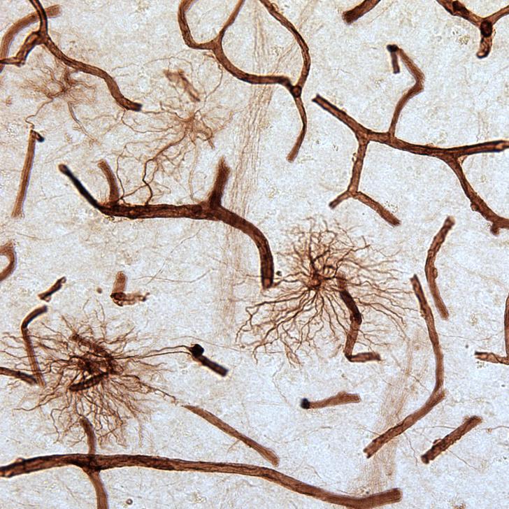 Фото №1 - Депрессия связана с изменениями в клетках мозга