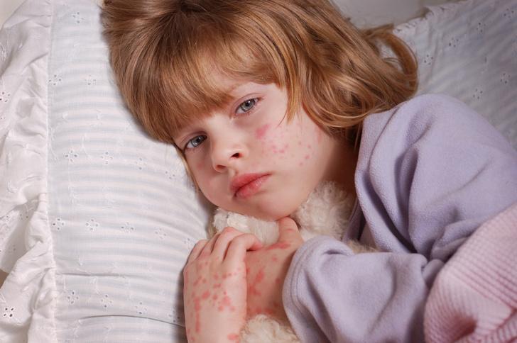 Причины и виды сыпи у детей
