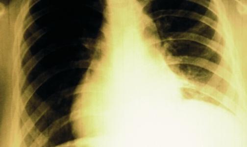 Фото №1 - ВОЗ: 9 млн человек заразились туберкулезом за год
