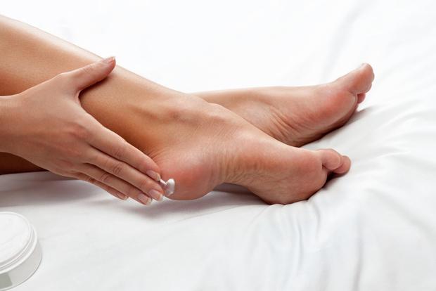 Мозоли на ногах, натоптыши, грибок кожи ног