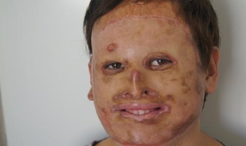 Фото №1 - Российские хирурги подарили новое лицо 20-летнему пациенту