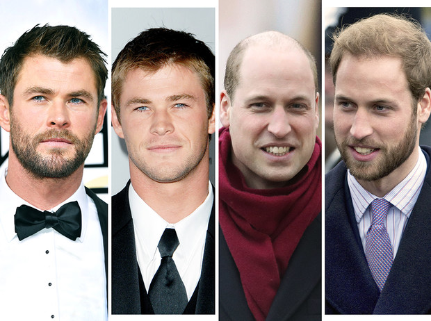 Фото №1 - 35 звездных фото, доказывающих, что иногда лучше побриться