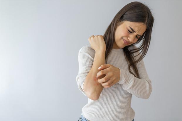 дерматит фото виды крем аллергический на голове на лице у ребенка на ногах на руках