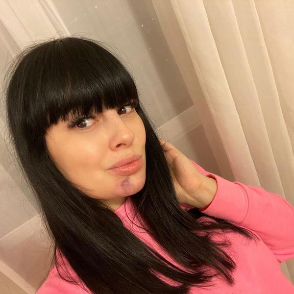 Фото №2 - Лицо в синяках: Ермолаева рассказала, что с ней произошло