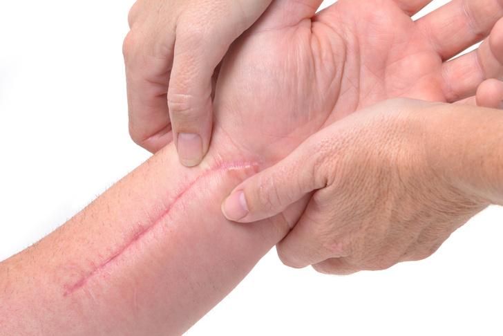 shutterstockПри заживлении раны образуется рубец из соединительной ткани. Восстановление нервных волокон внутри него идет не совсем точно. В частности, не полностью восстанавливаются отростки гамма-мотонейронов, которые регулируют чувствительность болевых рецепторов. Без такой подстройки мы испытывали бы боль при каждом движении. Но на месте травмы эта тонкая регуляция нарушена, и некоторые рецепторы реагируют даже на изменения атмосферного давления при перемене погоды.