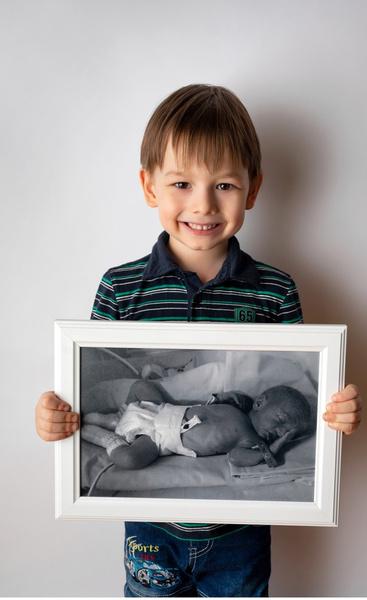 Фото №3 - Недоношенные детки сразу после рождения и спустя годы: фото