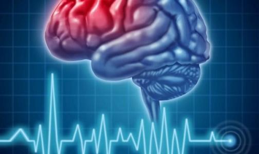 Фото №1 - Витамин Е защитит мозг от инсульта
