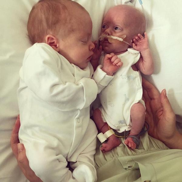 Фото №1 - Малыш весом 450 г выжил благодаря объятиям брата-близнеца