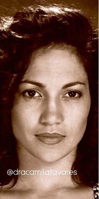 Фото №3 - Как пластические операции меняют лицо женщины: примеры звезд