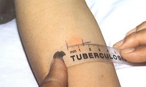 Фото №1 - Разработана новая система диагностики туберкулеза