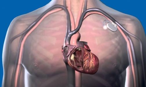 Фото №1 - Впервые в Петербурге пациенту имплантируют «умный» дефибриллятор