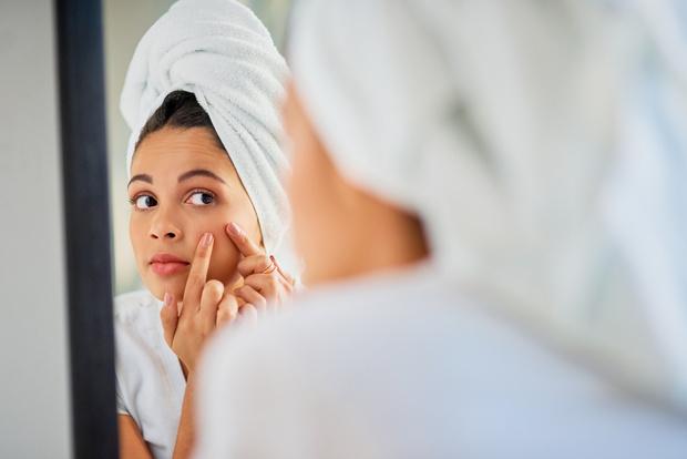 Маскне это фото лечение как лечить что делать что такое, прыщи после тканевой маски, раздражение на лице от медицинской маски, сыпь на лице от медицинской маски