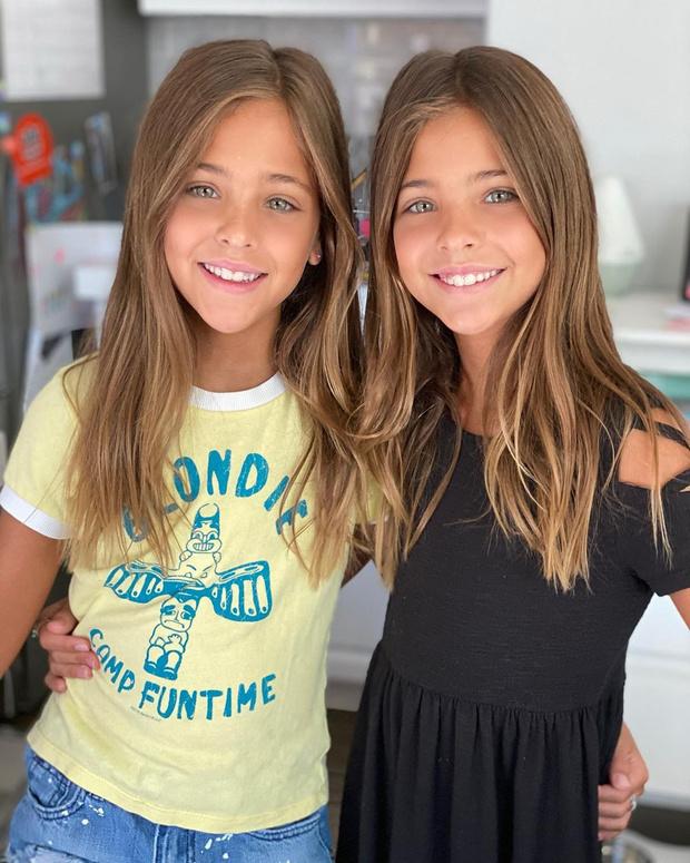 Фото №1 - Как выглядят родители самых красивых близняшек в мире