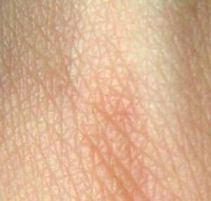Фото №1 - В Петербурге откроют производство человеческой кожи