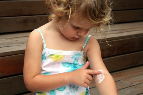 Нейродермит у детей: использование мазей