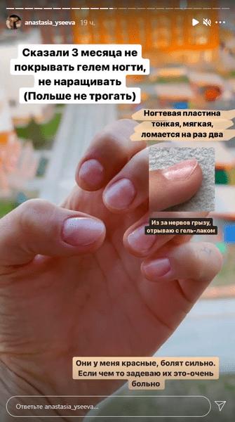 Фото №1 - Настя Усеева поделилась проблемой с ногтями