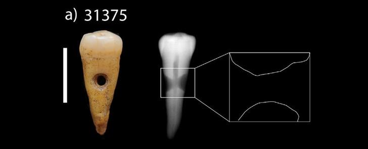 Фото №1 - В Турции найдены украшения из человеческих зубов