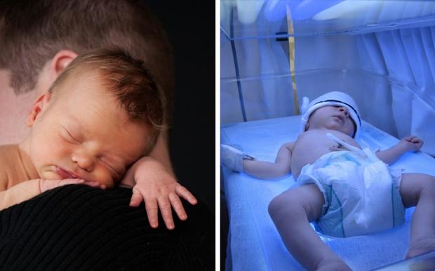 Фото №3 - Желтуха у новорожденных: что мне с тобой делать, золотце мое?